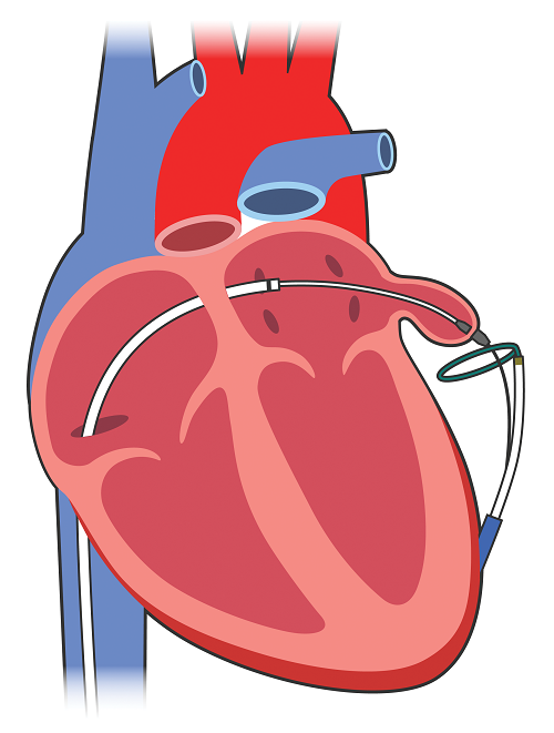 left atrial appendage closure using ligation and the lariat device