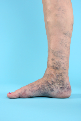 Help For Varicose Veins And Spider Veins Knowing Your Options