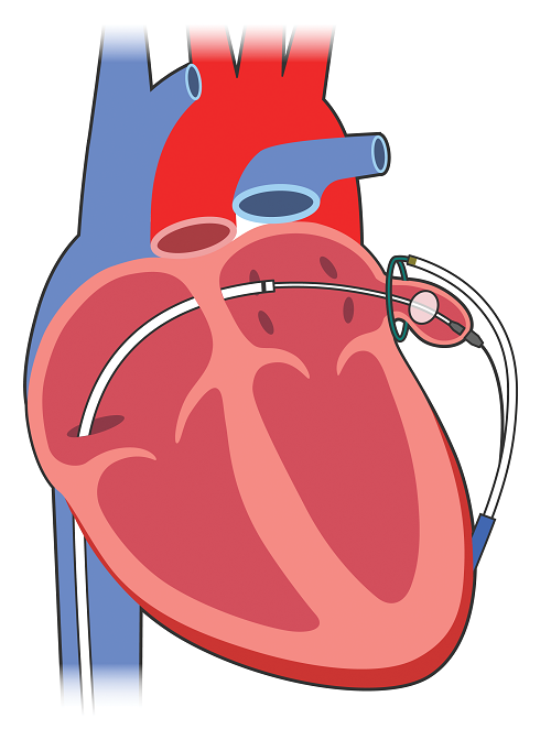 left atrial appendage closure using ligation and the lariat device, Human Body