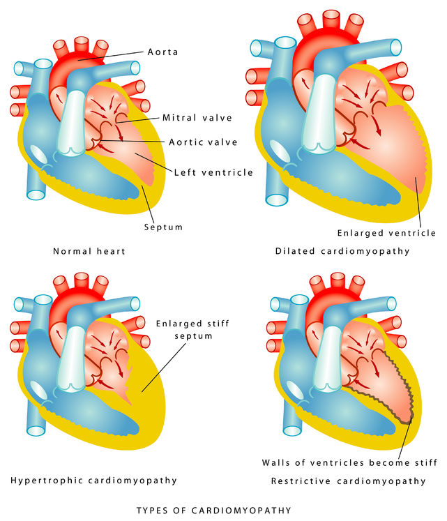 what are cardiomyopathies?, Skeleton
