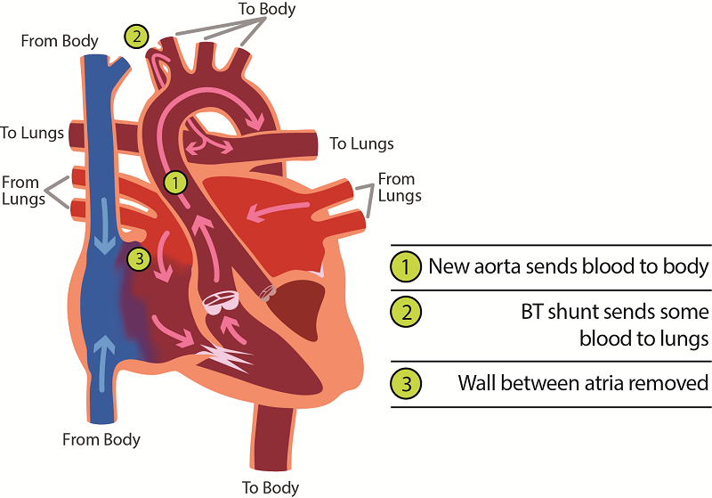 Treating Hypoplastic Left Heart Syndrome Hlhs With Staged Surgeries