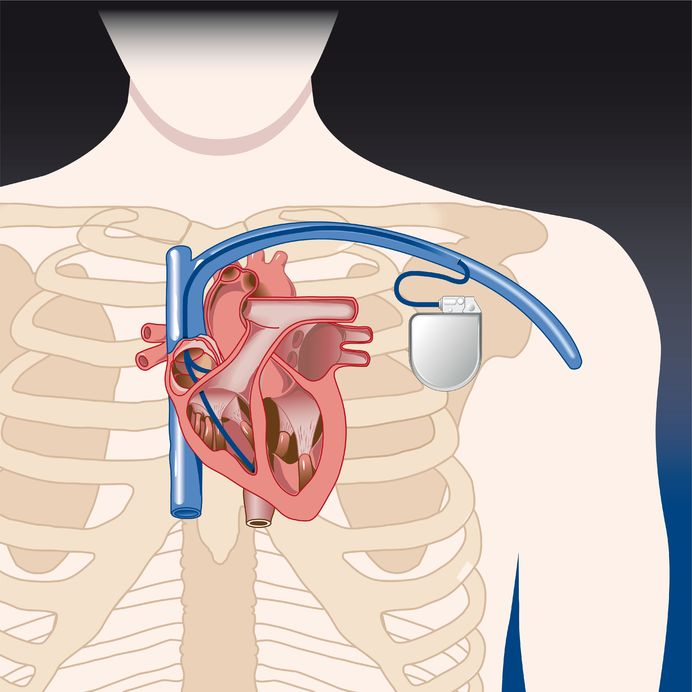 Your Pacemaker Procedure What To Expect